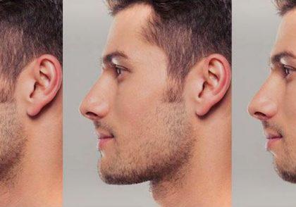 حالت های چانه و فک در آرایشگری