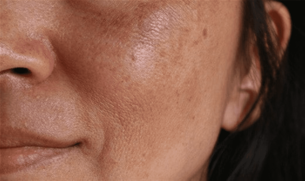 کدر شدن پوست