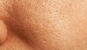 منافذ باز پوست در پوست های خیلی چرب